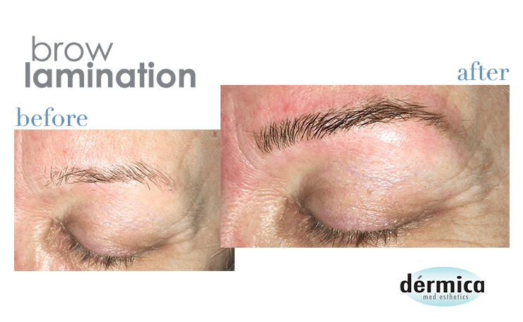 How does brow lamination work?