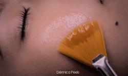 dermica photo facials