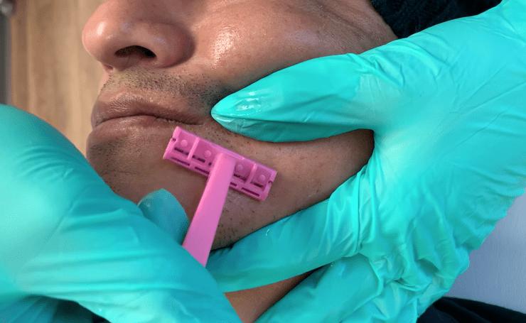 ingrown-hair-removal-methods