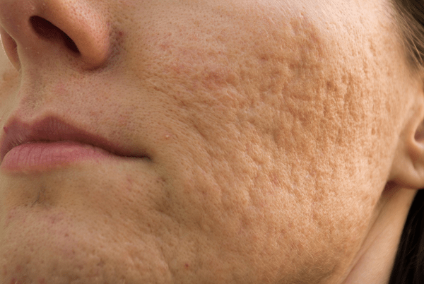 Acne Scars - Dermatology On Bloor