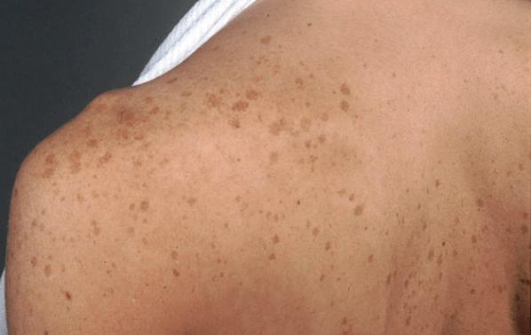 Brown Spots - Hyperpigmentation