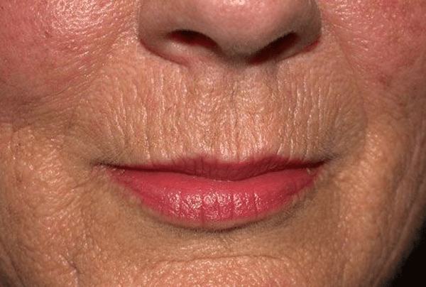Smokers Lines - Dermatology On Bloor