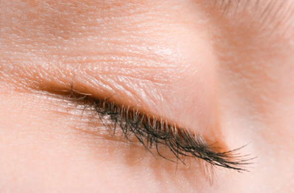 Thinning Lashes