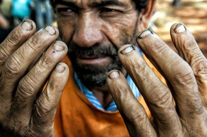 O combate ao trabalho escravo está em declínio no Brasil