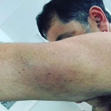 Após beijo, casal é agredido e expulso de formatura no RS