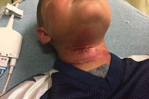 Garoto de 8 anos sofre tentativa de enforcamento em ataque racista nos EUA