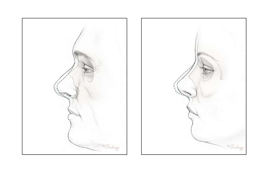 Nose comparisons. Image credit: Chris Gralapp