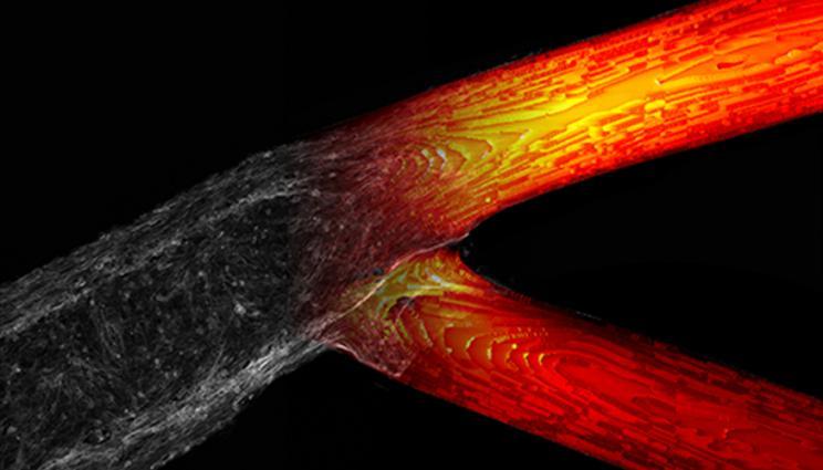 computer analysis carried out at llnl revealed a p - La impresión 3D en la lucha contra el cancer