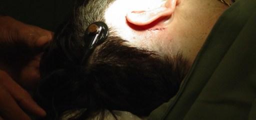 Imagem da cirurgia. Aparece apenas a cabeça do David, com o cabelo raspado ao redor da orelha. No momento da foto, ele estava com a parte externa do Implante Coclear conectada à cabeça, a fim de testar os eletrodos.