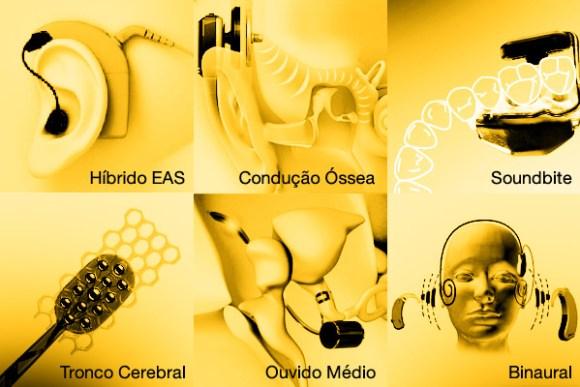 tipos-implantes