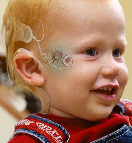 Imagem de um bebê loirinho, com claros olhos azuis, de perfil.  Ele sorri docemente, deixando a mostra seus dentes de leite típicos de bebês. Ele veste um macacão jeans e uma camiseta vermelha. Na orelha, está preso a parte externa do implante coclear: antena presa à cabeça e um aparelho atrás da orelha, preso por um anel de silicone. Um desenho foi aplicado de forma que se possa visualizar a parte interna do IC. Antena receptora, transmissor, feixes de eletrodos e terra. O desenho mostra também o ouvido interno e a cóclea preenchida pelo feixe de eletrodos.
