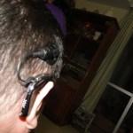 Imagem da parte externa do implante coclear, com o aparelho preso na orelha, ligado por uma espécie de antena, até um círculo que fica preso na cabeça, por imã.