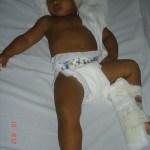Kadu, deitado no leito hospitalar, usando apenas uma fralda e o turbante-curativo, se recuperando da cirurgia de Implante Coclear