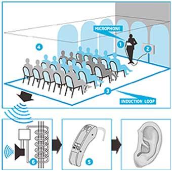 Esquema de Hearing Loop