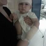 Imagem de Mauricyo com 1 ano de idade, no colo da mãe. Ele usa curativo em forma de turbante típico da cirurgia do implante coclear. O avental cirurgico está levantado e dá pra ver a barriga gordinha de bebê dele. Ele olha para a foto sério.