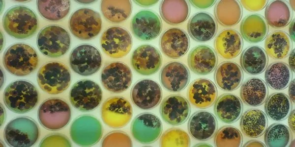 bacterial colonies image