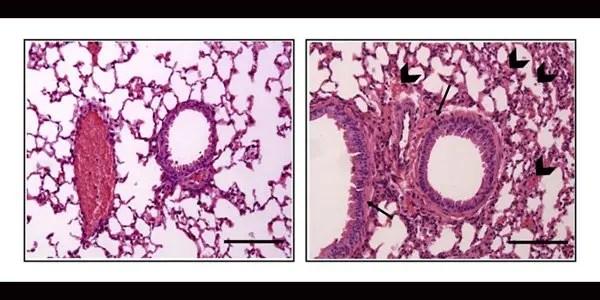 Estrogen worsens allergic reactions in mice