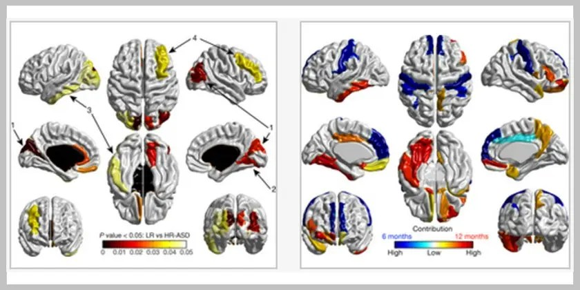 Early brain development in infants at high risk for autism spectrum disorder
