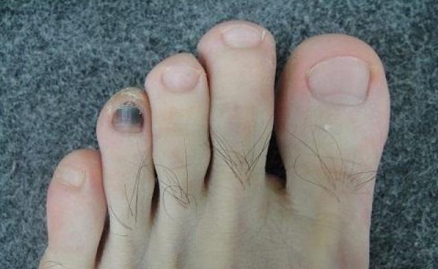 痛!指甲受傷瘀青只能拔掉?醫:不用對自己殘忍 – 第一手報導