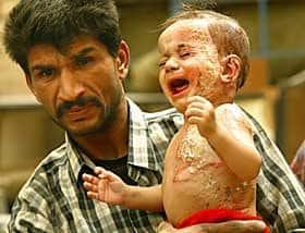 Kindslachtoffer na een aanval met witte fosfor door het Amerikaanse leger in Irak.