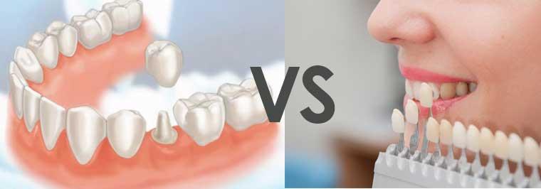 Mencegah Gigi untuk Mengalami Perubahan Warna- Global Estetik Dental Care