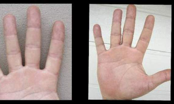 Amazing palmistry, success signs for business,