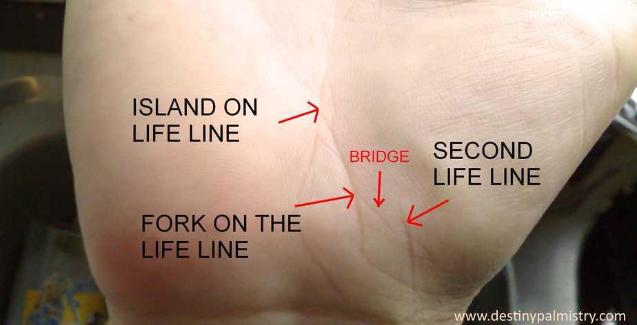 life line is broken, breaks in life line palmistry questions