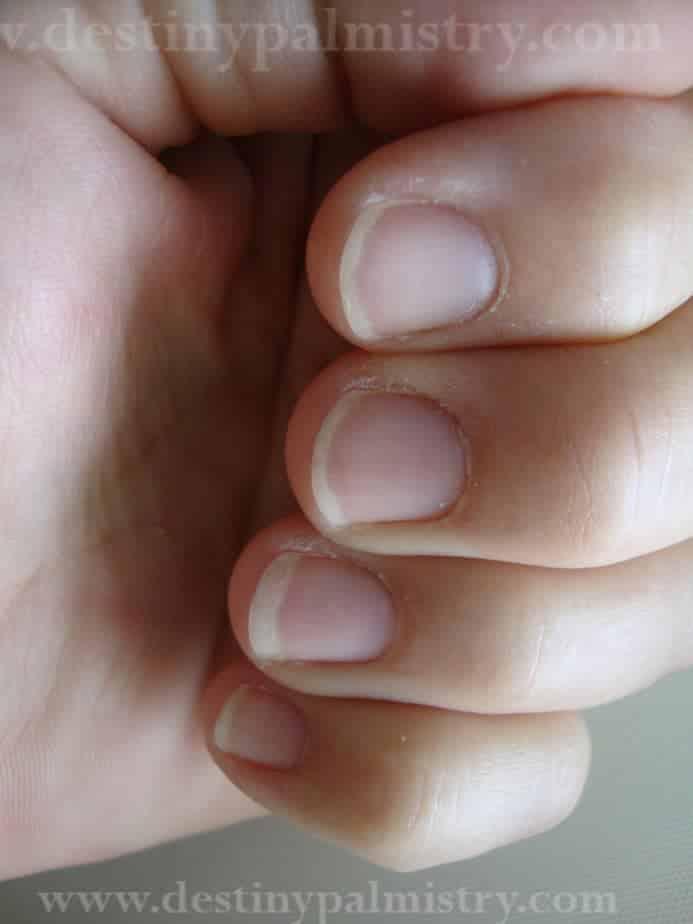 Fingernail Ridges Spots and Lines - Destiny Palmistry
