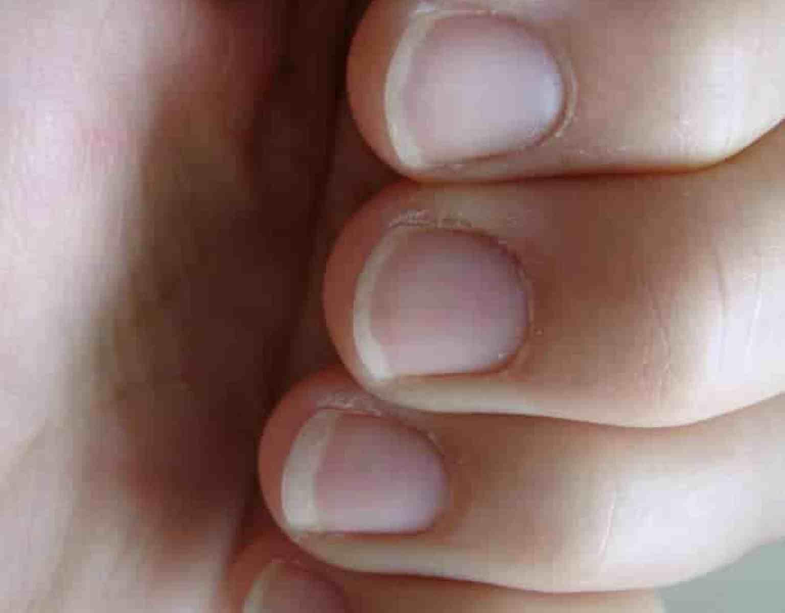 88+ Fingernail Health Ridges - Thick Fingernail Ridge Has Grown Out ...