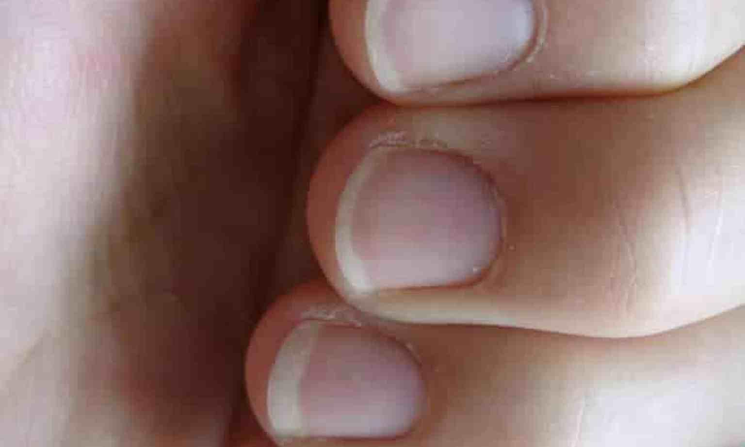 white fingernails, fingernail ridges, health warnings from the fingernails, white coloured nails, palm reading