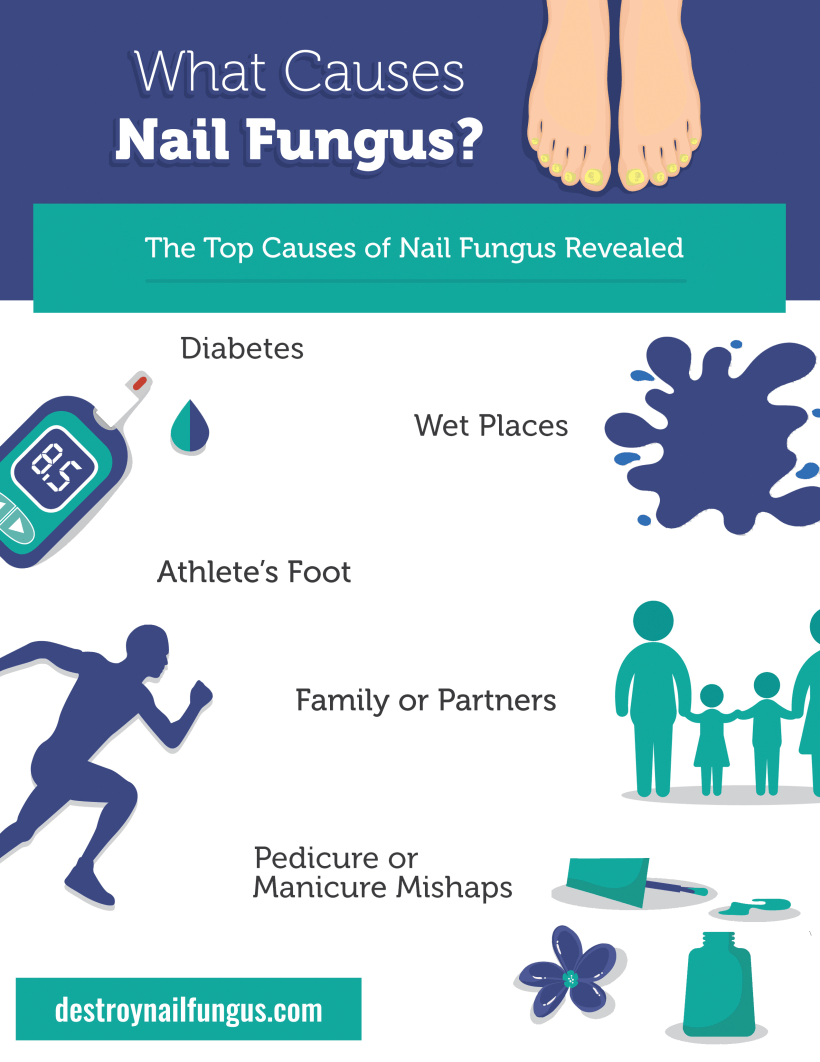 what causes nail fungus
