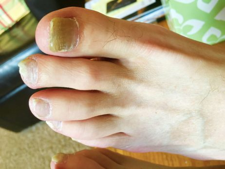infected toe treatment at home