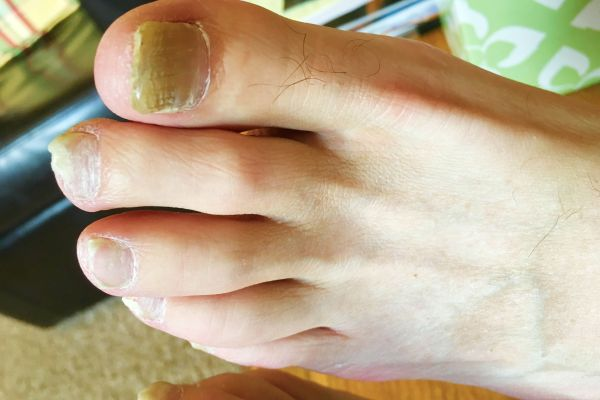 nail fungus spread to other parts of the body