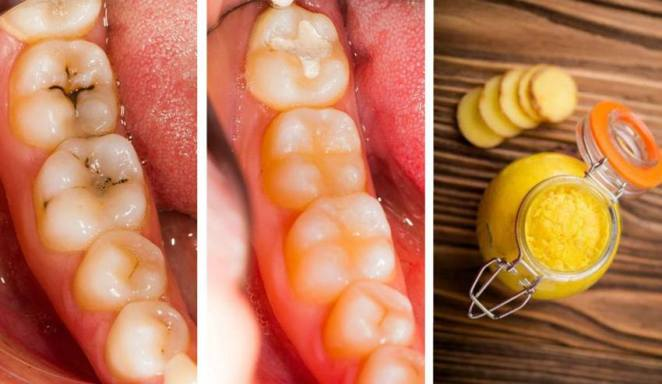 heal-cavities-and-tooth-decay-naturally