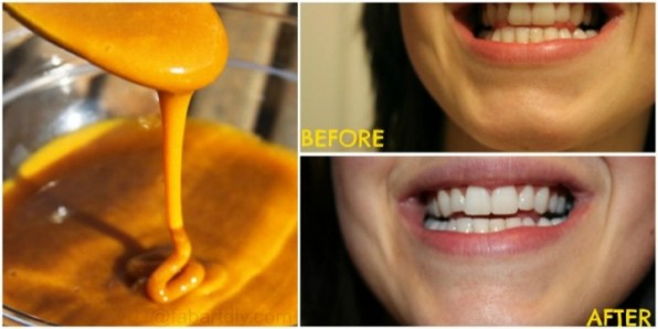how-to-whiten-your-teeth-with-turmeric-naturally-fabartdiy-video-e1453105141494