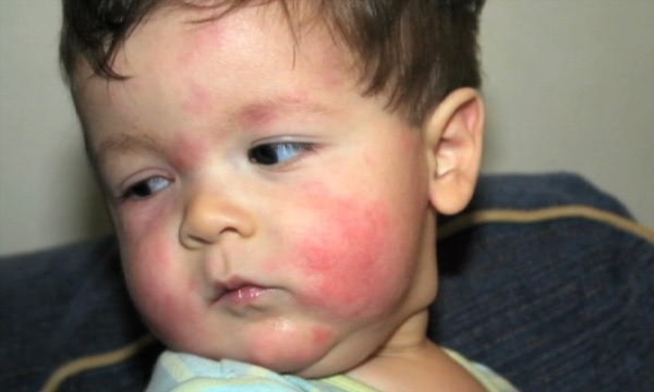 Причины появления красных пятен на лице у ребнка