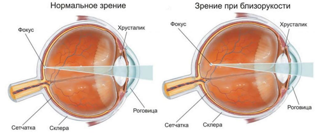 poate miopia duce la orbire