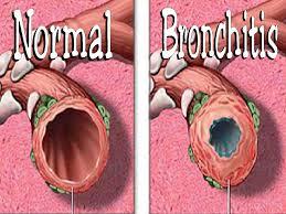 Obat Herbal Tradisional Untuk Penyakit BRONKHITIS