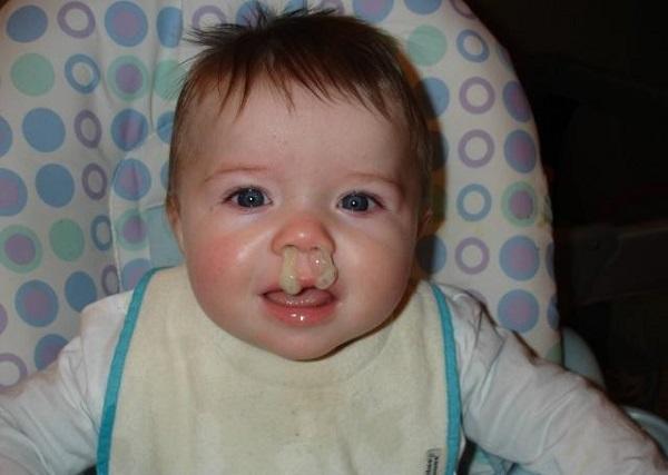 Зеленые сопли у ребенка причины лечение