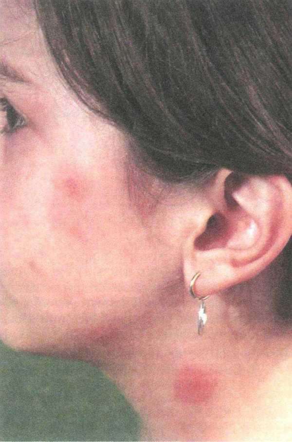 Кожная сыпь фото у детей – виды детских инфекционных ...