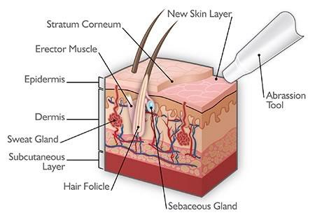 acne-microdermabrasion