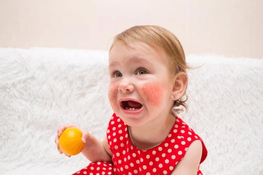 Пищевая и лекарственная аллергия и их варианты