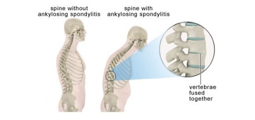 What is ankylosing spondylitis and 5 signs to catch it early