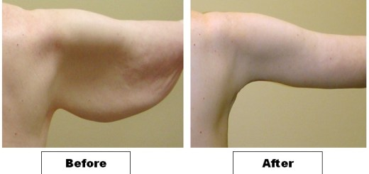 Some sure shot ways to lose fat from upper arms