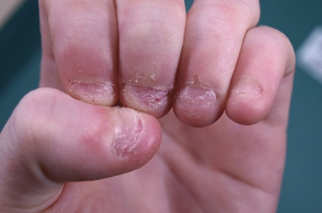 You will never bite your nails after reading the hazards and adverse effects of nail biting