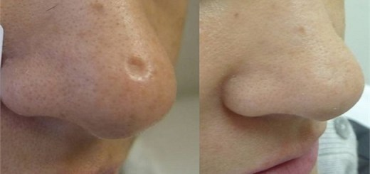Try out these five amazing natural remedies for removing Scars