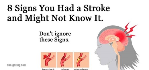 Prominent signs you've had a stroke but you don't even know it