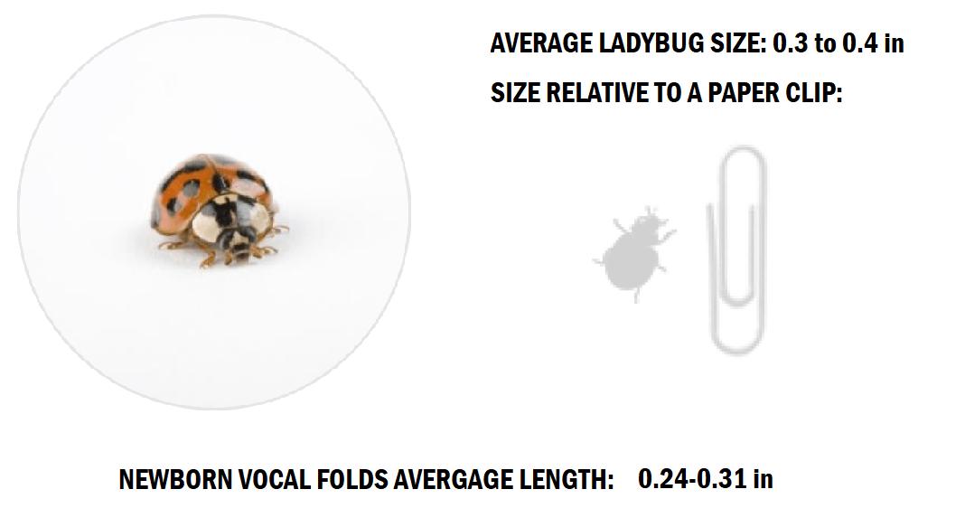 Newborn Vocal Folds