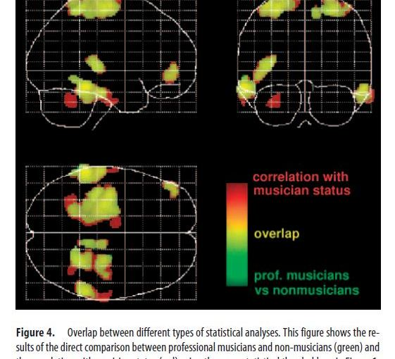 The Human Brain and the Influence of Music