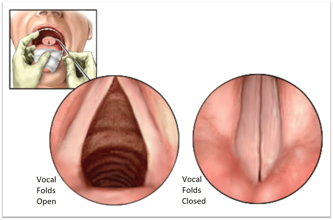 Superior View of Folds
